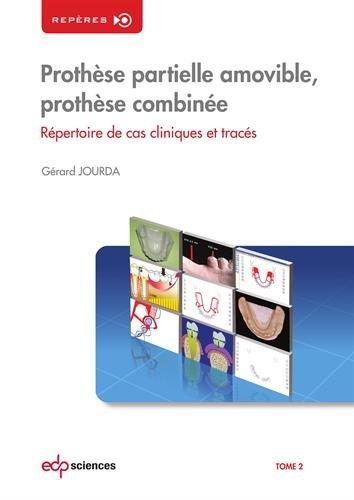 Prothèse partielle amovible, prothèse combinée : Tome 2, Répertoire de cas cliniques et tracés