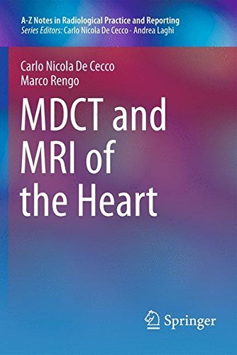 MDCT and MRI of the Heart (A-Z Notes in Radiological Practice and Reporting) by Carlo N. De Cecco (2013-10-16)