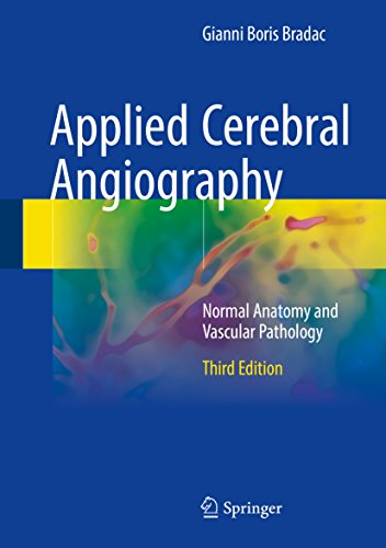 Applied Cerebral Angiography: Normal Anatomy and Vascular Pathology (English Edition)