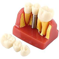 Modèle de dent éducatif de démonstration dentaire de résine d'analyse d'implant de pont en couronne pour l'école de dentiste