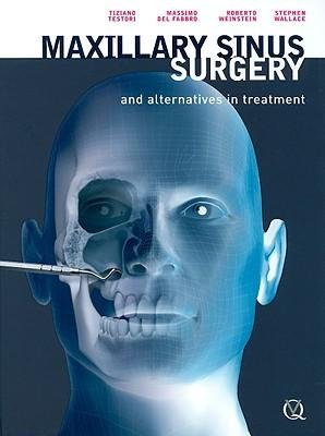 [(Maxillary Sinus Surgery and Alternatives in Treatment)] [Author: Tiziano Testori] published on (March, 2009)