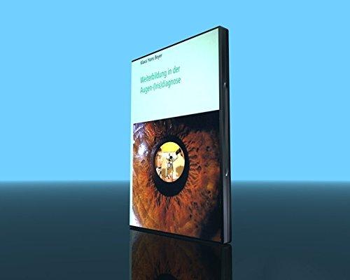 Weiterbildung in der Augen-(Iris)diagnose - Augen-iris