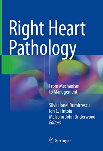 Right Heart Pathology: From Mechanism To Management por Silviu Ionel Dumitrescu epub