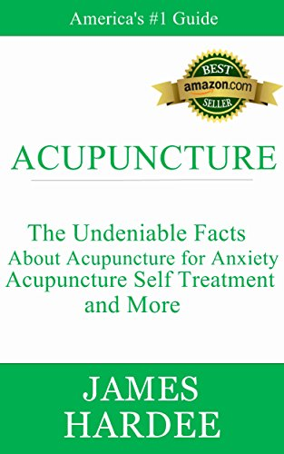 acupuncture-the-undeniable-facts-about-acupuncture-for-anxiety-acupuncture-self-treatment-and-more-e