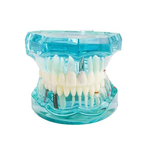 Implante dental modelo de los dientes Enseñanza Estudio Modelo Oral Tipodonto Modelo extraíble Enseñar los dientes de demostración estándar estudiar la enseñanza Modelo azul