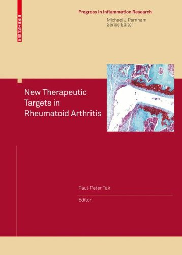 New Therapeutic Targets in Rheumatoid Arthritis (Progress in Inflammation Research) (Online Target Store)