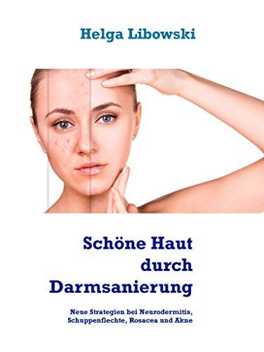 Schöne Haut durch Darmsanierung: Neue Strategien bei Neurodermitis, Schuppenflechte, Rosacea und Akne -