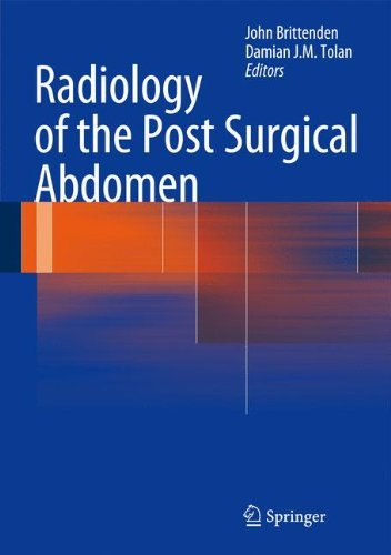 Radiology of the Post Surgical Abdomen (2012-03-30)