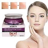 Whitening Cream, Altersflecken Creme, Flecken Creme, Sommersprossen Entfernen, New Anti Melasma Dark Age
