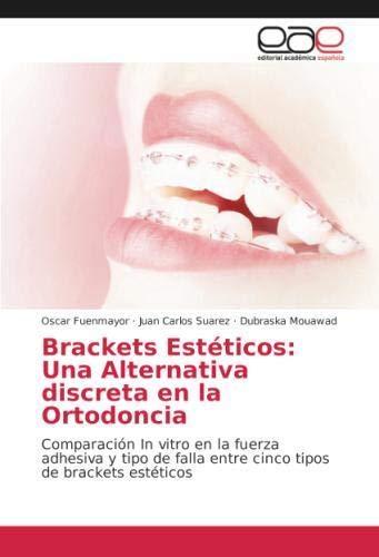Brackets Estéticos: Una Alternativa discreta en la Ortodoncia: Comparación In vitro en la fuerza adhesiva y tipo de falla entre cinco tipos de brackets estéticos por Oscar Fuenmayor