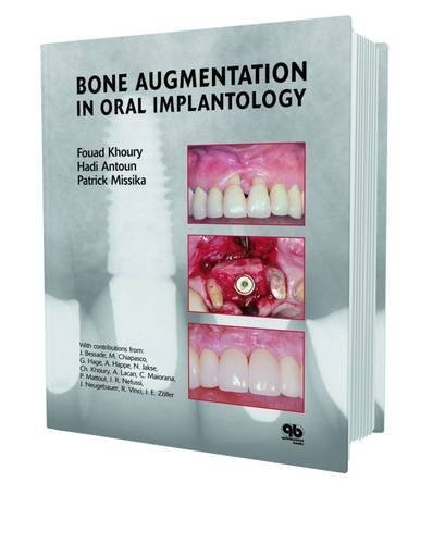 Bone Augmentation in Oral Implantology by Fouad Khoury (2007-01-01)