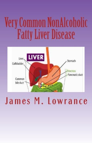 Very Common NonAlcoholic Fatty Liver Disease: How To Know if You Have Hepatic Steatosis