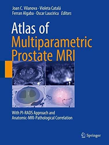 Atlas of Multiparametric Prostate MRI: With PI-RADS Approach and Anatomic-MRI-Pathological Correlation