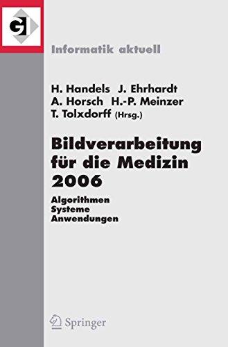 Bildverarbeitung für die Medizin 2006: Algorithmen - Systeme - Anwendungen Proceedings des Workshops vom 19. - 21. März 2006 in Hamburg (Informatik aktuell)
