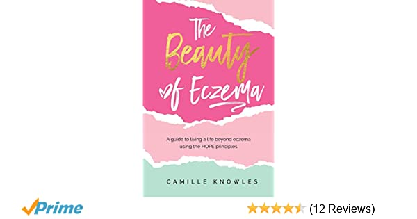 the beauty of eczema a guide to living a life beyond eczema using the hope principles