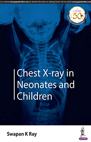 Chest X-Ray In Neonates And Children