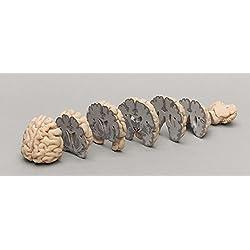 Cerebro humano corte coronal
