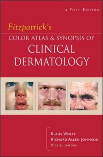 Fitzpatrick's Color Atlas & Synopsis of Clinical Dermatology: Fifth Edition by Klaus Wolff (2005-03-01)
