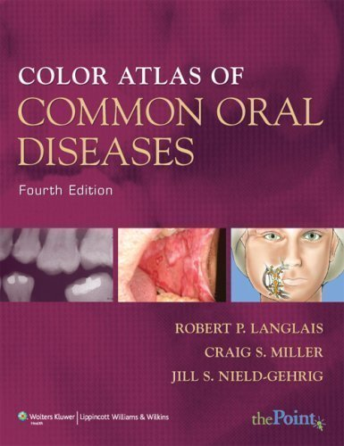 Color Atlas of Common Oral Diseases 4 Pap/Psc Edition by Langlais DDS MS, Robert P., Miller DMD, Craig S., Nield-Geh published by Lippincott Williams & Wilkins (2009) Paperback