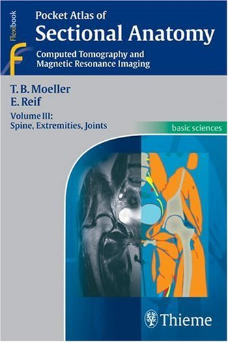 Sectional Anatomy Computed Tomography and Magnetic Resonance Imaging - Spine, Extremities, Joints by Torsten Bert Moeller (2007-08-02)