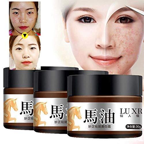 Harddo Skin Brightening Sommersprossencreme Dark Spot Corrector Remover Melasma Verblassungscreme für Frauen