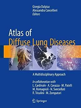Atlas Of Diffuse Lung Diseases: A Multidisciplinary Approach por Giorgia Dalpiaz epub