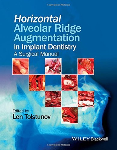 Horizontal Alveolar Ridge Augmentation in Implant Dentistry: A Surgical Manual by Len Tolstunov (2016-02-05)