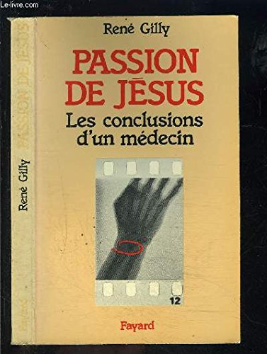 LA PASSION DE JESUS. Les conclusions d'un médecin