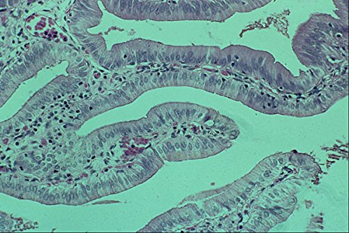 440000-columnar-epithelium-gall-bladder-a4-photo-poster-print-10x8