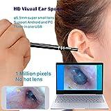 2 In 1 Multifunktionale USB Ohrreinigungswerkzeug HD Visuelle Ohr Löffel Earpick Mit Mini Kamera Ohr Pflege Reinigungswerkzeuge