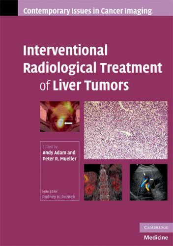 Interventional Radiological Treatment of Liver Tumors (Contemporary Issues in Cancer Imaging) (2008-12-11)