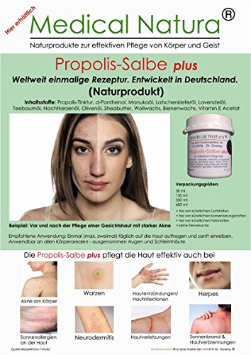 50ml Propolis Salbe plus, Creme, Aknesalbe / Aknecreme, Pickelsalbe, Herpessalbe, Warzensalbe, mit...