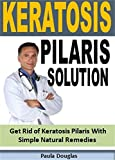Keratosis Pilaris: Get Rid of Keratosis Pilaris With Simple Natural Remedies (English Edition)