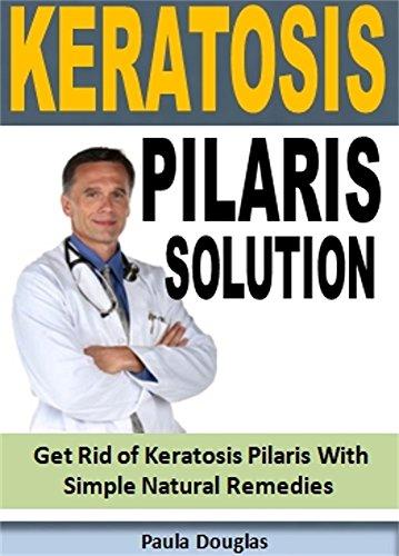 Keratosis Pilaris: Get Rid of Keratosis Pilaris With Simple Natural Remedies (English Edition)