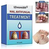 Antimicotico,Nail Fungus Treatment,Trattamento Fungine,di fungo del chiodo,Onicomicosi,Combatte la micosi delle unghie di mani e piedi,elimina l'onicomicosi e favorisce la ricrescita delle unghie sane immagine