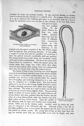 impresion-antigua-de-las-larvas-1896-de-gordius-del-gusano-de-la-triquinosis-de-la-historia-natural