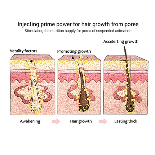 Hair Serum, Aceite para Crecimiento del Cabello, Crecimiento del Cabello, Tratamiento para el Cabello, Tratamiento Cabello, Estimula el Crecimiento Cabello para Hombres y Mujeres