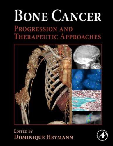 Bone Cancer: Progression and Therapeutic Approaches (English Edition)
