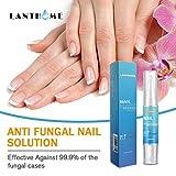 HI5 Kills 99.9% Fungus Nails Oil Fungal Nail Treatment Repair Remover Gel Softener