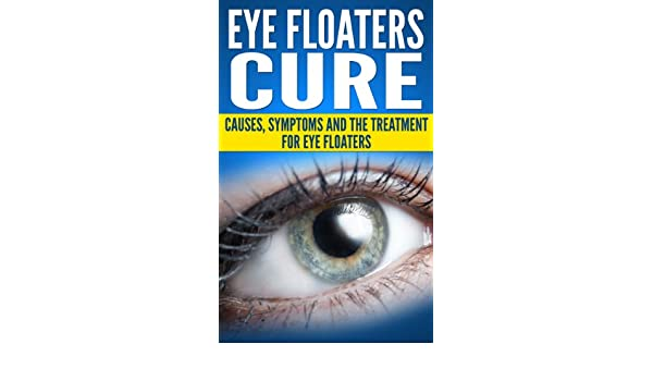 Eye Floaters Cure (Health and Wellness) eBook: William Gray: Amazon