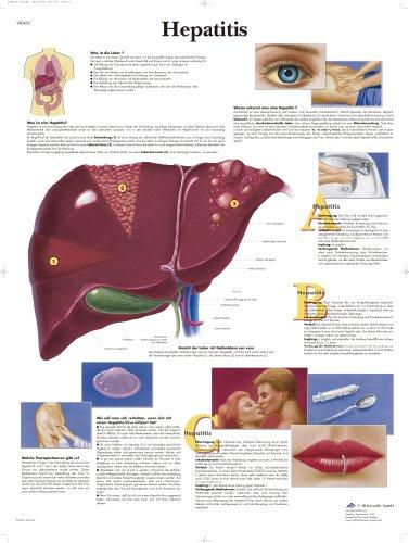 3B Scientific Lehrtafel laminiert - Hepatitis