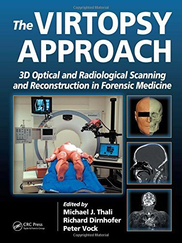 The Virtopsy Approach: 3D Optical and Radiological Scanning and Reconstruction in Forensic Medicine (2009-05-18)