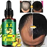Shoppy shop Hot Sales Unisex Anti Hair Loss Treatment Serum Ginger Extract Hair