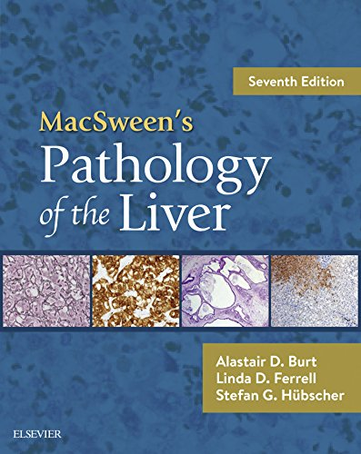 MacSween's Pathology of the Liver E-Book (English Edition)