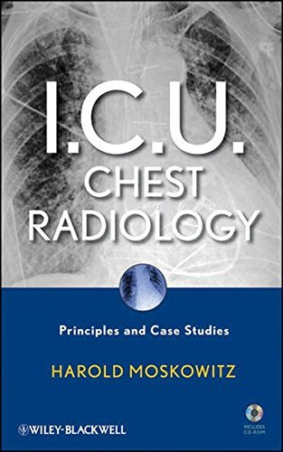 I.C.U. Chest Radiology: Principles and Case Studies by Harold Moskowitz (2010-05-25)