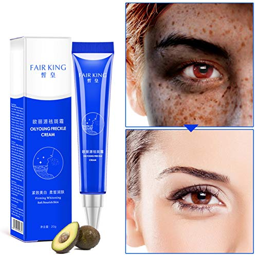 Allbestaye Whitening Cream Gesicht Freckles Removal Cream Dunkle Flecken Creme gegen Pigmentflecken Altersflecken Hyperpigmentierung