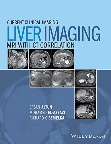 Liver Imaging: MRI with CT Correlation (Current Clinical Imaging, Band 1)