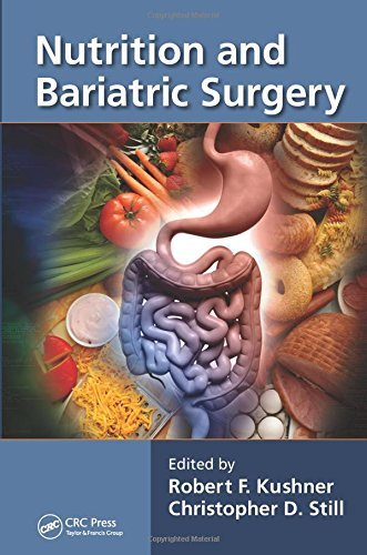 Nutrition and Bariatric Surgery (2014-08-21) par unknown