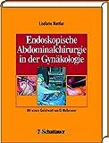 Endoskopische Abdominal-Chirurgie in Gynäkologie