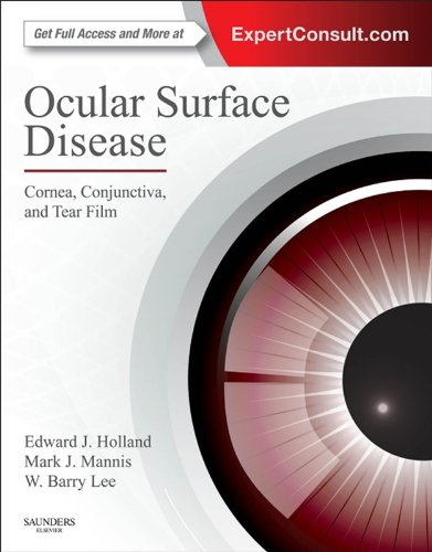 ocular-surface-disease-cornea-conjunctiva-and-tear-film-e-book-expert-consult-online-and-print